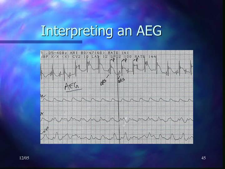 Interpreting an AEG