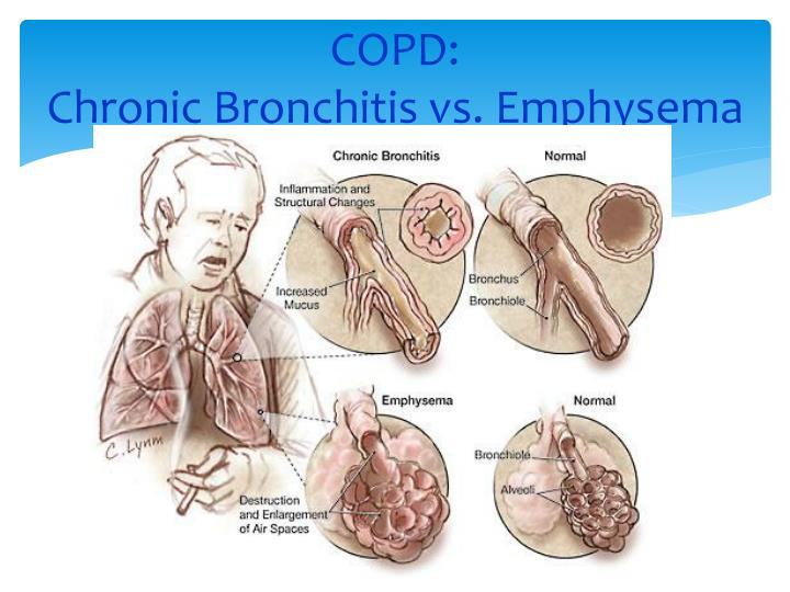 COPD: