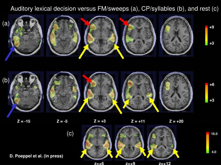 Auditory lexical decision versus FM/sweeps (a), CP/syllables (b), and rest (c)