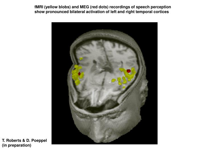 fMRI (yellow blobs) and MEG (red dots) recordings of speech perception