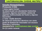 xantogranuloma juvenil multiple5