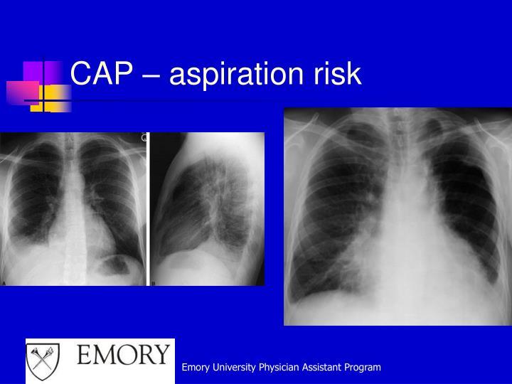 CAP – aspiration risk