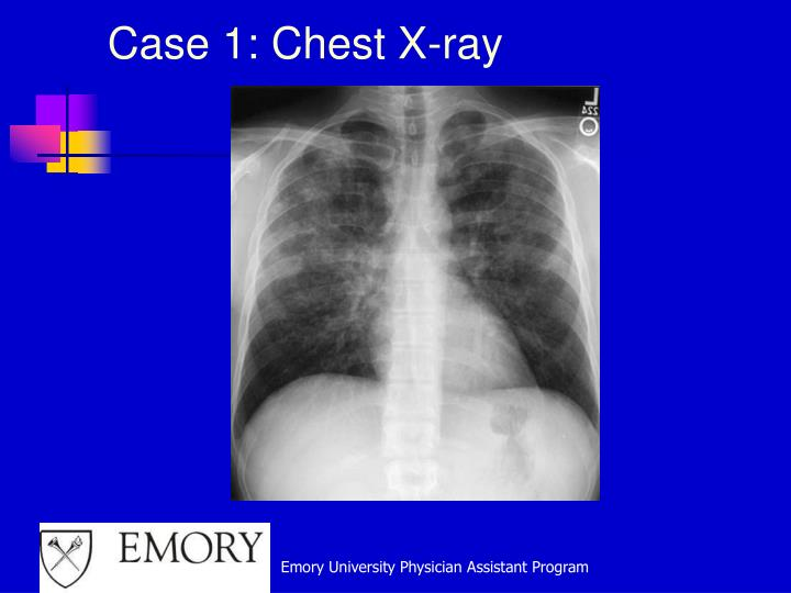 Case 1: Chest X-ray