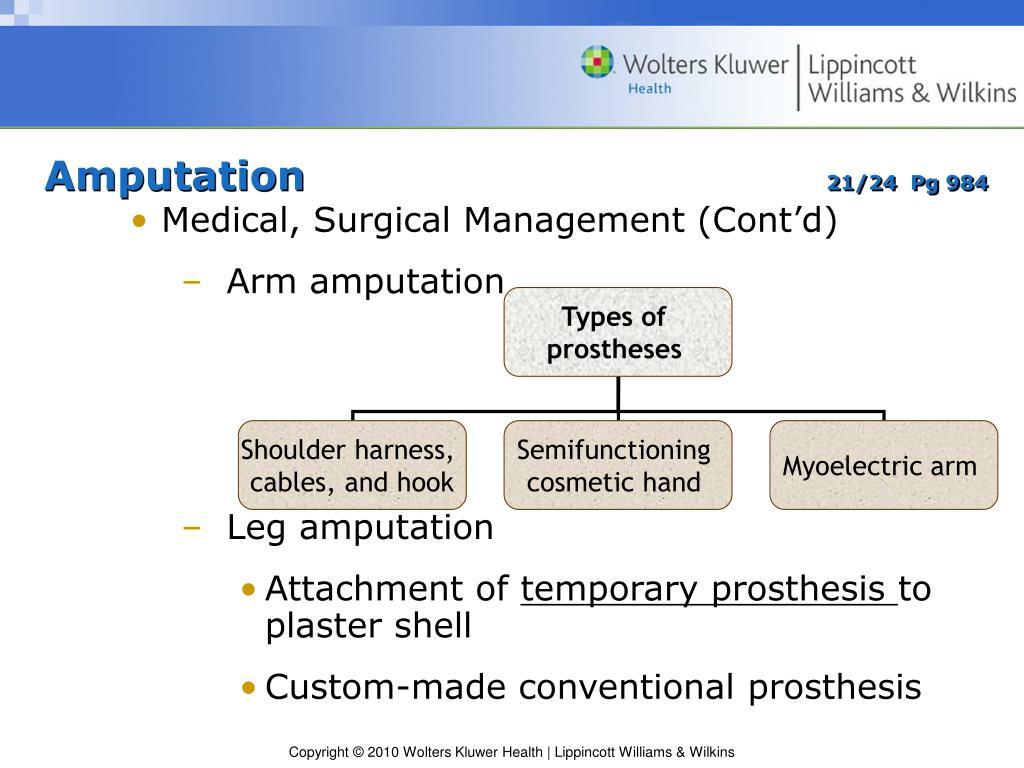 Management Of Amputation