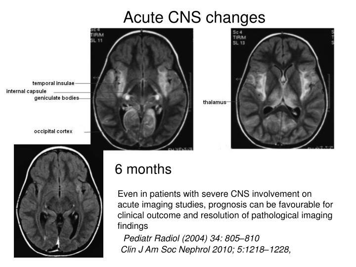 Acute CNS changes
