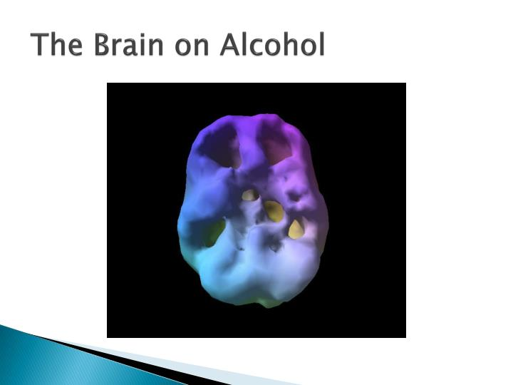 The Brain on Alcohol