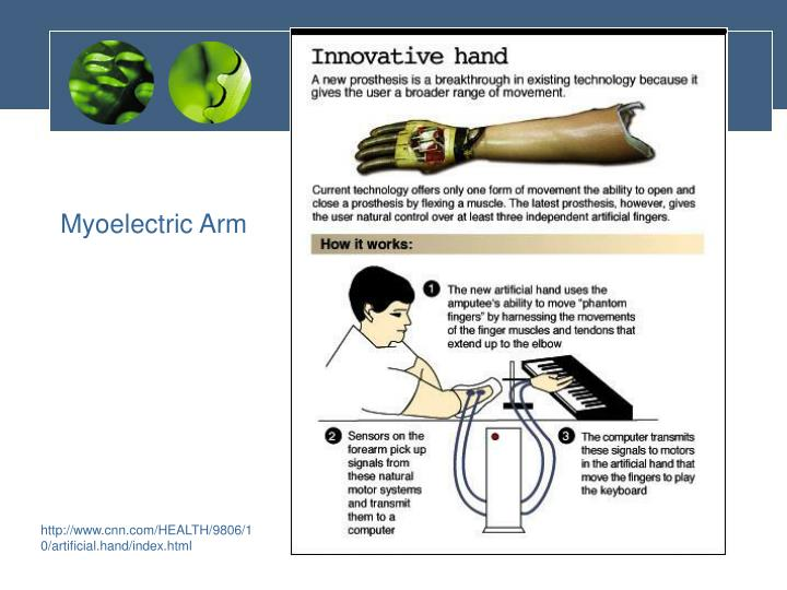 Myoelectric Arm
