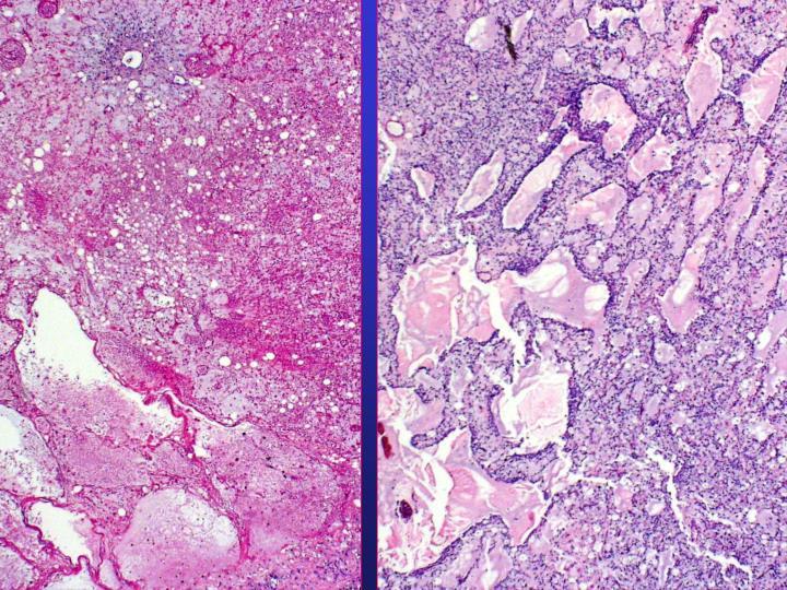 Metastatic lung mass