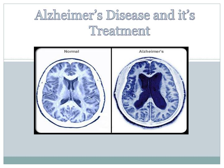 alzhiemiers disease hca 240 Hca 240 week 2 assignment infectious disease essay sexually transmitted disease that has affected many people and altered many lives and a disease that i hope one.