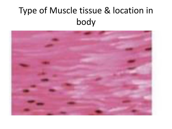 Type of Muscle tissue & location in body