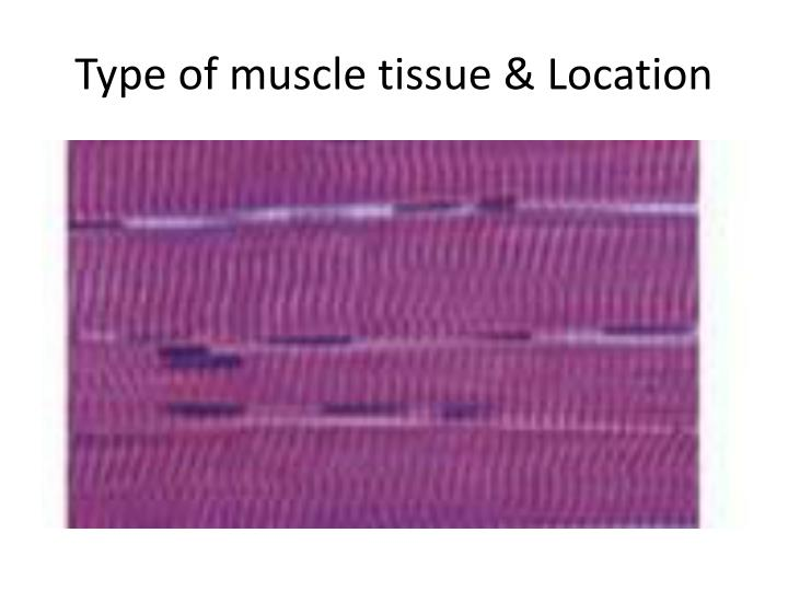 Type of muscle tissue & Location