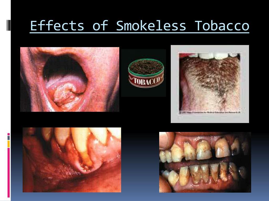 PPT - Tobacco PowerPoint Presentation - ID:6837287