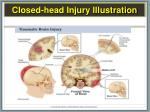 closed head injury illustration