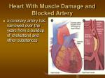 heart with muscle damage and blocked artery