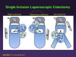 single incision laparoscopic colectomy1