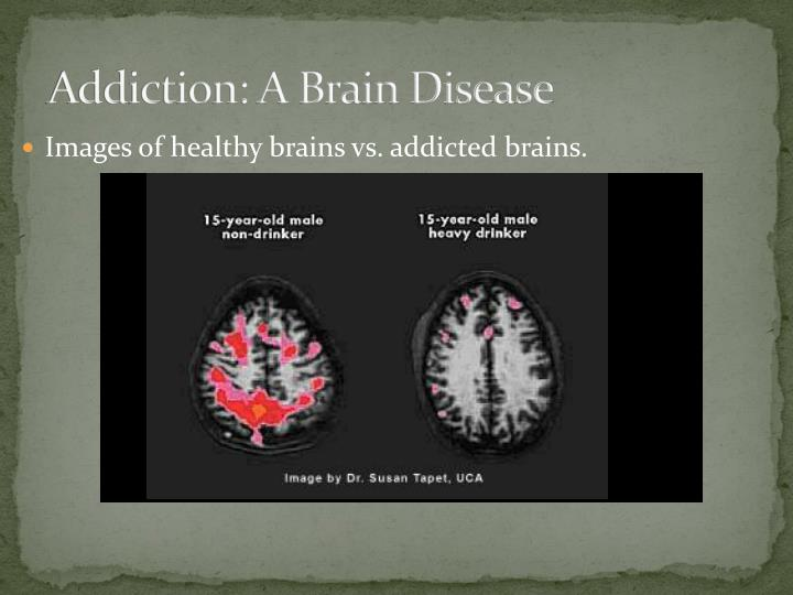 Addiction a brain disease
