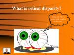 what is retinal disparity