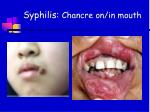 syphilis chancre on in mouth