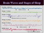 brain waves and stages of sleep