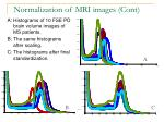 normalization of mri images cont1