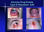 adverse drug events type b reactions sjs