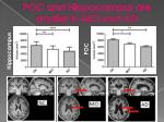 poc and hippocampus are smaller in mci and ad