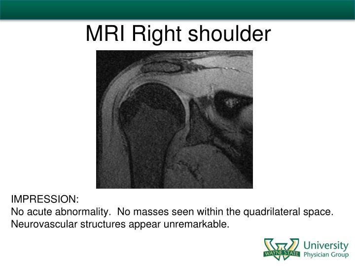 MRI Right shoulder