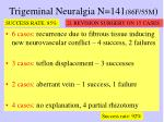 trigeminal neuralgia n 141 86f 55m
