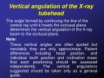 vertical angulation of the x ray tubehead