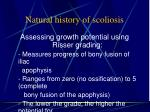natural history of scoliosis2
