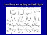 insuffisance cardiaque diastolique