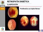 retinopat a diab tica clasificaci n3