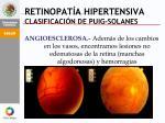 retinopat a hipertensiva clasificaci n de puig solanes2