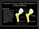 common causes of hip pain and loss of hip mobility