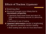 effects of traction ligaments