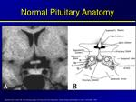 normal pituitary anatomy1