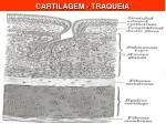 cartilagem traqueia