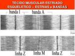 tecido muscular estriado esqueletico estrias e bandas