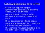 echocardiogramme dans la rao
