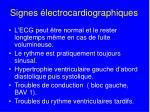 signes lectrocardiographiques