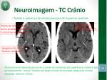 neuroimagem tc cr nio1