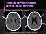 perte de diff renciation cortico sous corticale1
