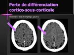 perte de diff renciation cortico sous corticale3