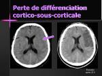 perte de diff renciation cortico sous corticale6