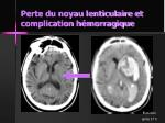 perte du noyau lenticulaire et complication h morragique