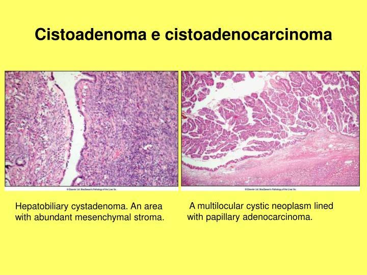 Cistoadenoma e cistoadenocarcinoma