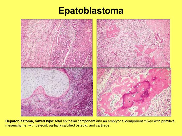 Epatoblastoma