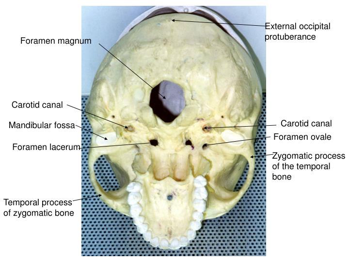 Ppt Incisive Foramen Powerpoint Presentation Id6875522