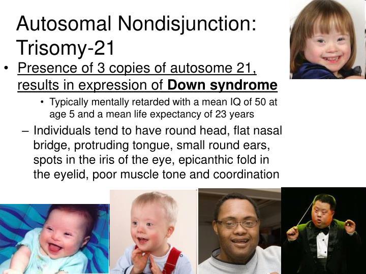 Autosomal Nondisjunction: Trisomy-21