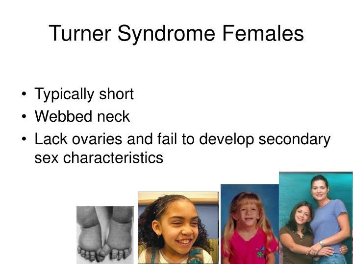 Turner Syndrome Females